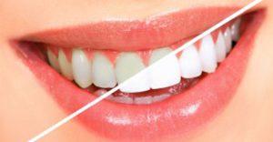 emergency dentist melbourne